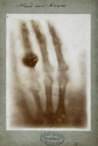 First_medical_X-ray_by_Wilhelm_Röntgen_of_his_wife_Anna_Bertha_Ludwig's_hand_-_18951222.jpg